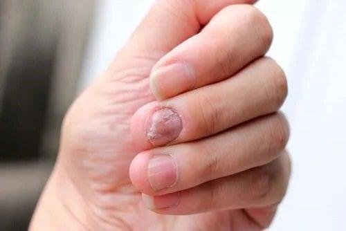 Ce este sindromul Hallopeau?