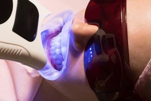 Tratament de albire la stomatolog