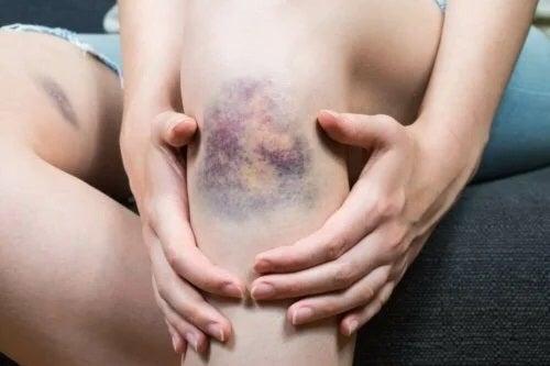 Care sunt cauzele tromboflebitei superficiale?