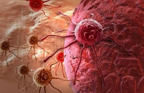 Celule canceroase în corpul uman