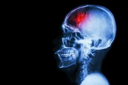 7 măsuri de prevenire a accidentului vascular cerebral