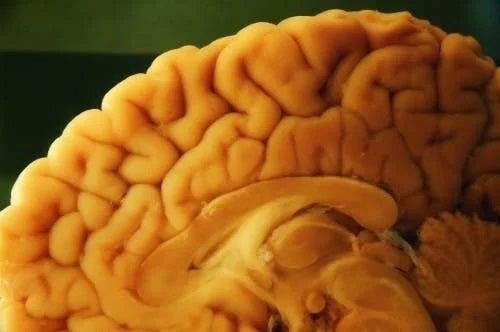 Creier examinat la autopsia neuropatologică