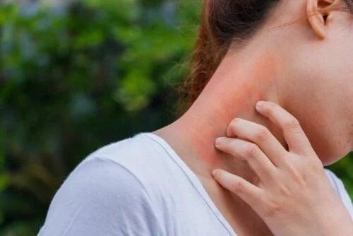 Dermatita și corticosteroizii: ce relație există?