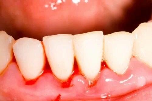 Dinți afectați de gura de tranșee