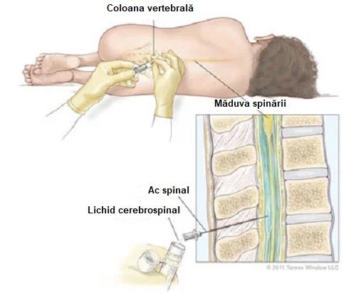 Pacient afectat de durerea de cap după puncția lombară