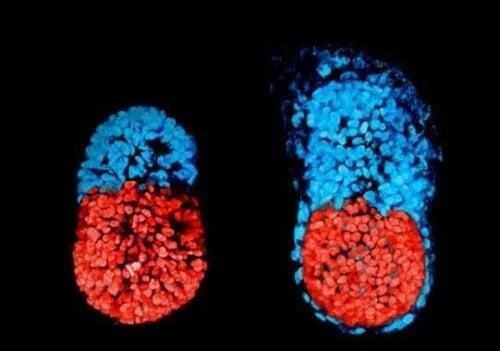 Embrioni fetus in fetu