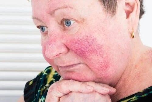 Femeie care se interesează ce să eviți dacă ai rozacee