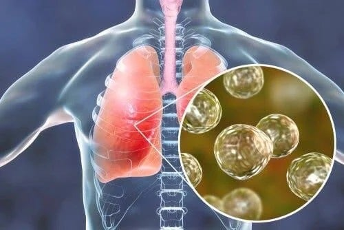 Infecție în plămâni