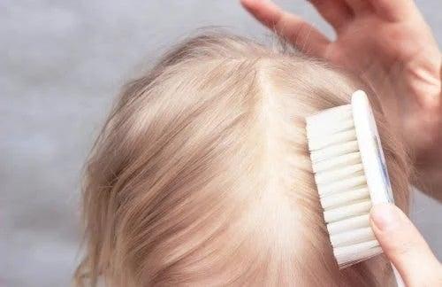 Îngrijirea părului pentru crusta de lapte