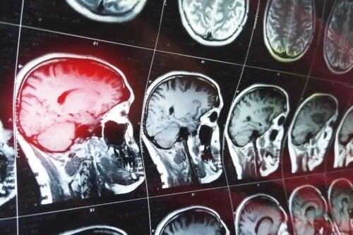RMN cerebral