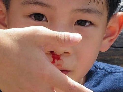 Sângerarea nazală la copii