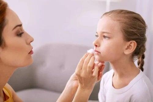 Sângerarea nazală la copii: cum o tratezi?
