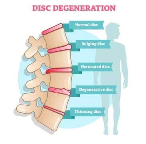 Simptomele bolii degenerative discale