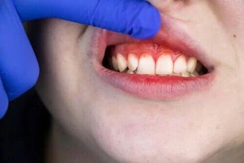 Originea, simptomele și tratamentul gurii de tranșee