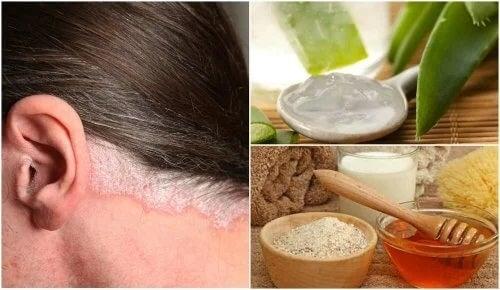 Tratamentul psoriazisului scalpului în mod natural