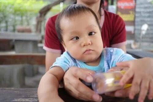 Copil care are nevoie de tratamentul sindromului Moebius