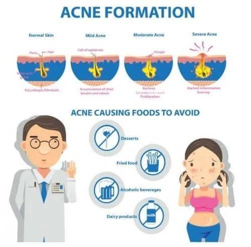 Simptomele și cauzele acneei conglobate