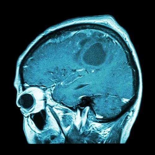 Când va apărea vaccinul contra cancerului cerebral?