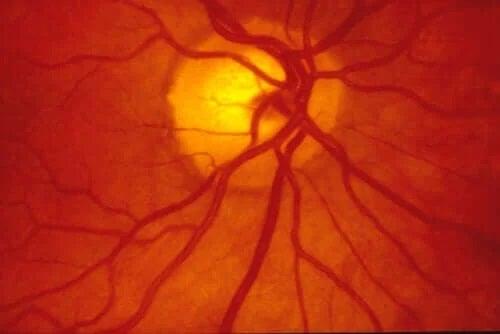 Dezlipirea de retină: intervenția chirurgicală