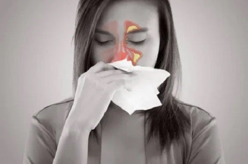 Durerea de cap din sinuzită este enervantă