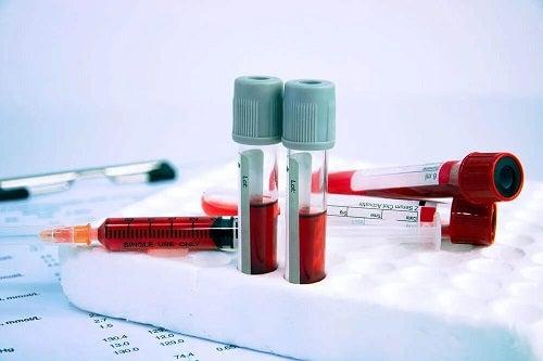 Fiole cu sânge artificial pentru transfuzii