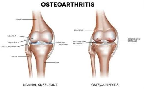 Osteoartrita afectează oasele