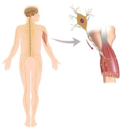 Tulburările neuromusculare afectează mușchii și nervii