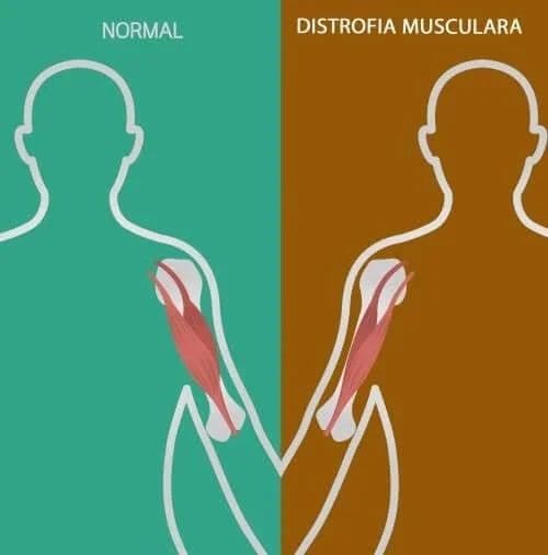 Tulburările neuromusculare: semne și simptome