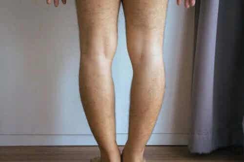 Cauze și tratament pentru genu varum