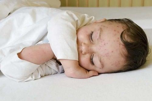 Bebeluș care are sindromul Ramsay Hunt