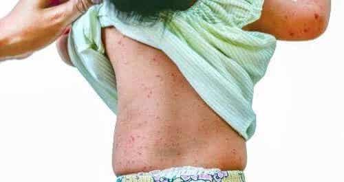Complicațiile roseolei și metode de prevenire