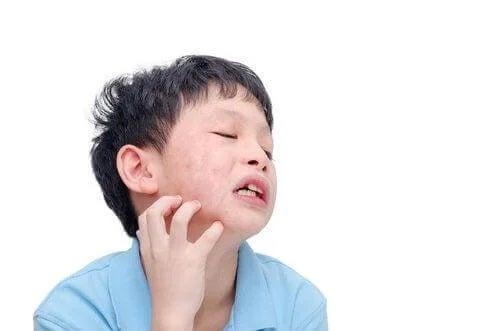 Copil care are nevoie de tratamentul oreionului