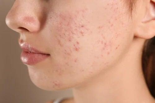 Fată care are acnee