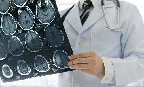Medic care examinează leziunile cerebrale traumatice