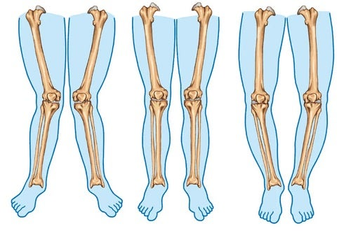 Picioare diferite