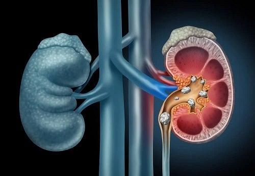 Descoperă dieta pentru pietrele la rinichi!
