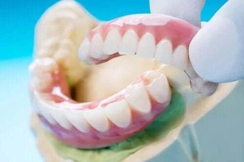 Tipurile și beneficiile punții dentare