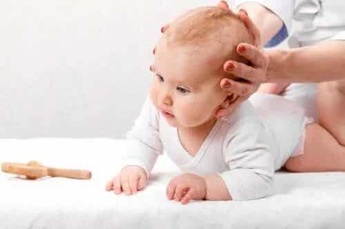 Tipurile, cauzele și tratamentul craniosinostozei