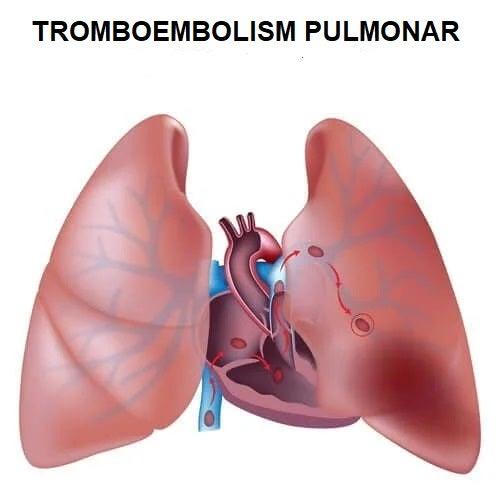 Tratamentul tromboembolismului pulmonar