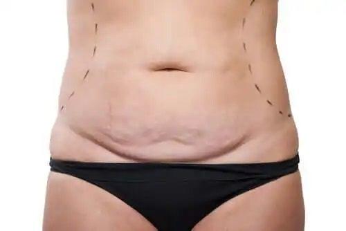 Ce este abdominoplastia