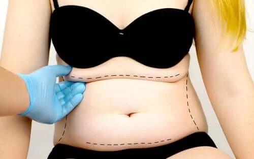 Ce este abdominoplastia?
