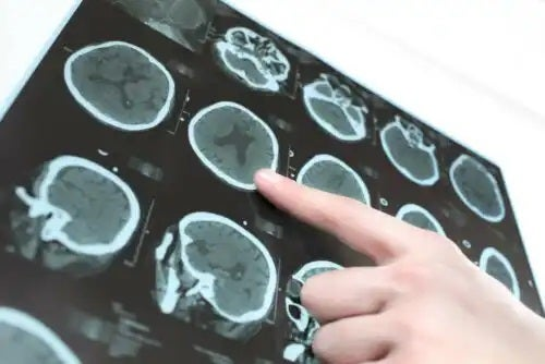 Diferența dintre tomografie și RMN văzută pe imagini