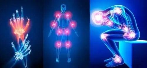 Dureri articulare în diverse zone ale corpului