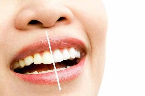 Femeie cu dinți pătați