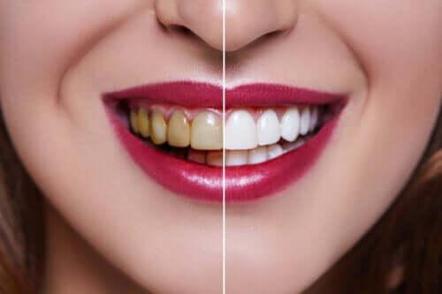 Descoperă cauzele dinților pătați