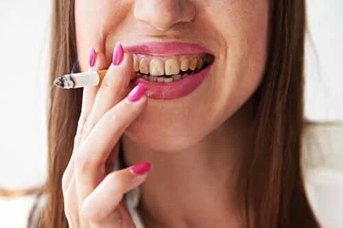 Cum se tratează melanoza fumătorului?