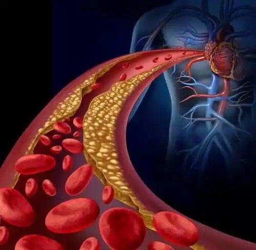 Grăsimile saturate sunt nocive pentru artere