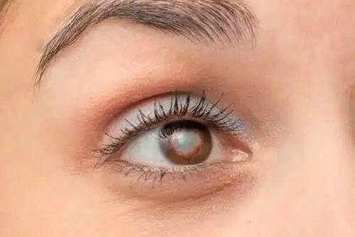 Îmbătrânirea prea rapidă a ochilor în sindromul Werner