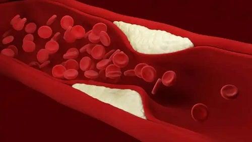 Îmbătrânirea prea rapidă a vaselor de sânge