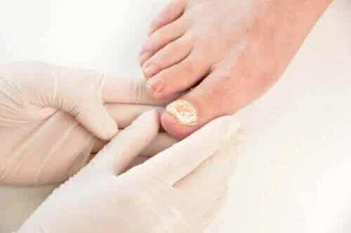 Infecțiile fungice ale unghiilor: prevenire